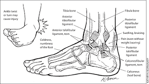 Foot Ankle Injury